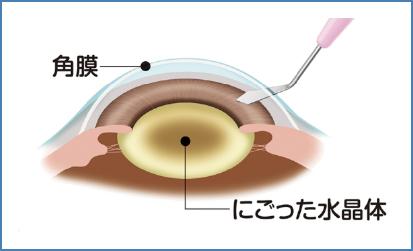 局所麻酔(点眼液)後、角膜に2.4mmの切開をします。水晶体を包んでいる袋を切開します。