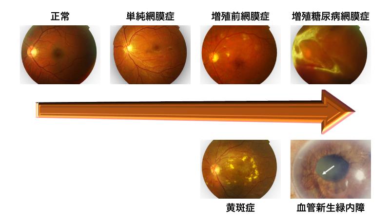 糖尿病網膜症説明図