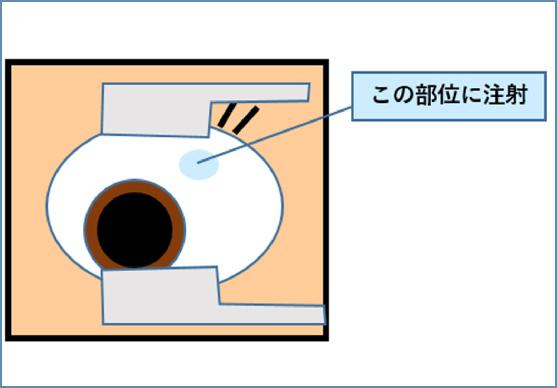 硝子体注射